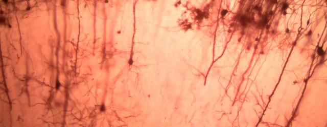 La opinión popular generalizada que encontramos hoy en día sobre la creación de neuronas en organismos adultos es bastante tajante: esta no existe. Esta suposición es ciertamente falsa; tal vez, esta creencia se deba a que en humanos hay dos tipos de células que no provienen de otras: las células […]